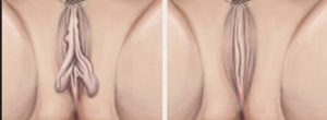 diminuicao-dos-pequenos-labios3